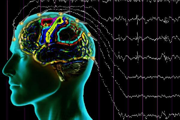 epilepsi, epilepsi nedir, sara nedir