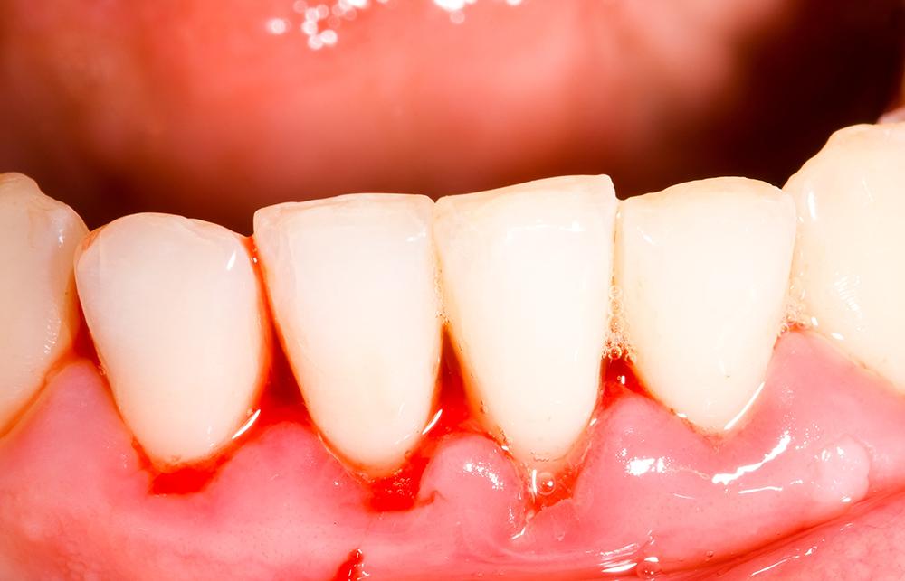 diş etleri neden kanar, diş eti kanaması, diş eti kanama sebepleri