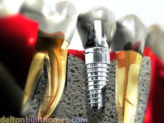 İmplant diş tedavi uygulaması, İmplant tedavi uygulaması, implantların temizlenmesi