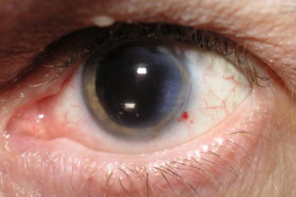 katarakt nedir ve nasıl tedavi edilir, katarakt ne zaman tedavi edilmelidir, katarakt ameliyat süresi