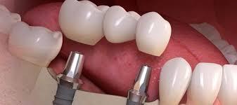 dişe implant yapımı, implant nasıl yapılır, implant uygulaması yapımı