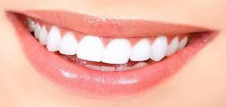 estetik diş fiyatları, estetik diş fiyatları nasıl belirlenir, diş fiyatlarını belirleyen etkenler