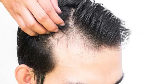 saç ekimi doktoru, saç ektirme, saç eken doktorun uzmanlığı