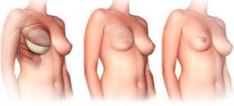 göğüs kanseri önlemleri, göğüs kanserine önlem alma, göğüs kanseri için alınabilecek önlemler