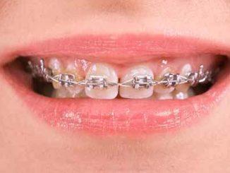 istanbul diş teli, diş teli fiyatları ne kadar, diş teli taktırma fiyatları