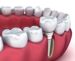 implant yapımı, implant nasıl yapılır, profesyonel implant