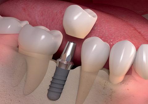implant nasıl yapılır, uzun ömürlü implant, implant markaları