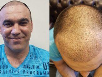saç ekim merkezi, saç ekimi yapımı, saç ekimi yapan merkezler