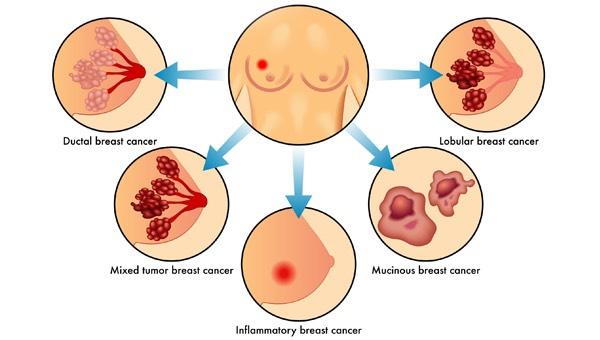 meme kanseri belirtileri, meme kanseri nasıl anlaşılır, meme kanseri belirtisi nelerdir