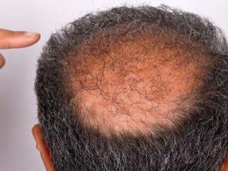 saç dökülmesi, saç dökülmesi tedavisi, pygeum saç dökülmesine etkisi