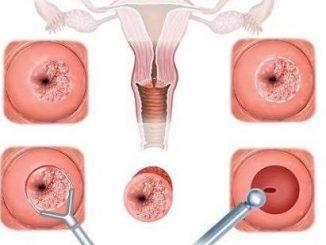 rahim yarası, rahim yarası belirtileri, rahim yarası tedavisi