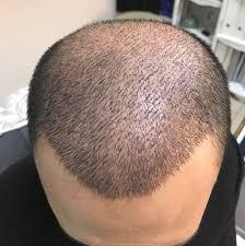 saç ekimi yapımı, saç ekimi öncesi, saç ekimi cerrahisi