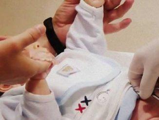 yeni doğan bebek sünneti, bebek sünneti, yeni doğmuş bebek sünneti yapımı
