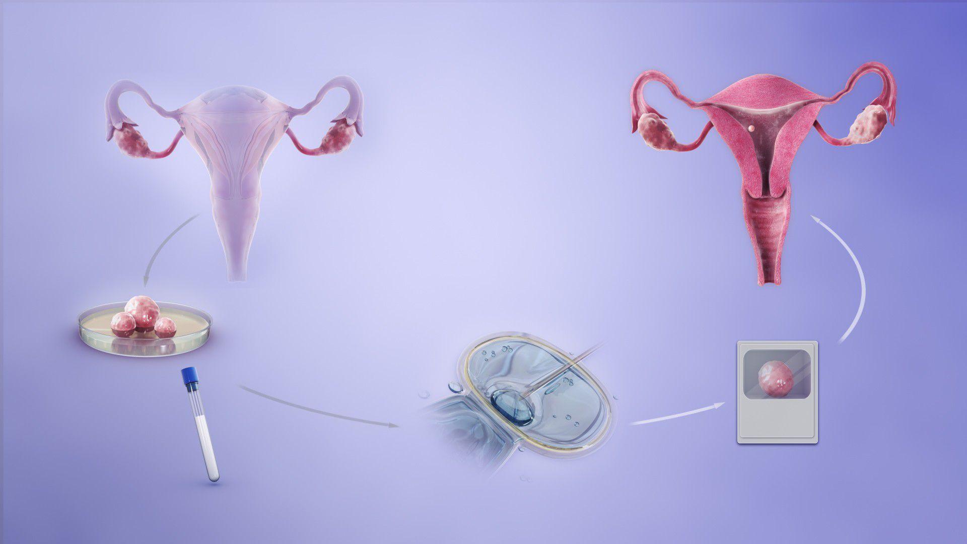embriyo bağlama, hamile kalma, embriyo bağlama ile hamile kalma