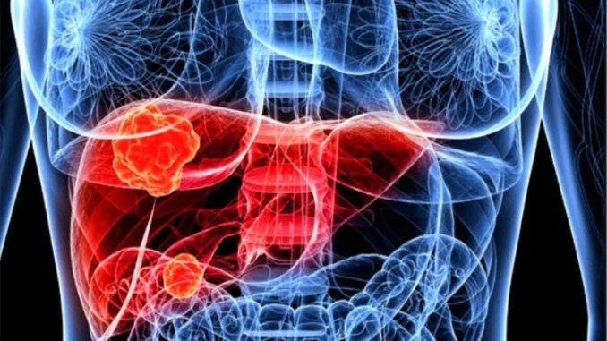karaciğer tümörü tedavisi, karaciğer hastalıkları, karaciğer tümörü nasıl tedavi edilir