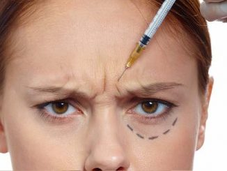 botoks nedir, botoks uygulaması, botoks neden yapılır