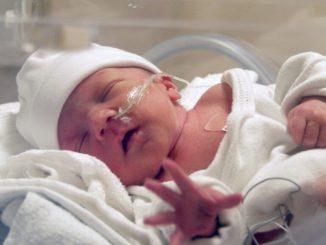 prematüre bebek, prematüre bakımı, prematüre beslenmesi